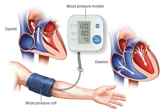Haz tu Causas hipertensión una realidad
